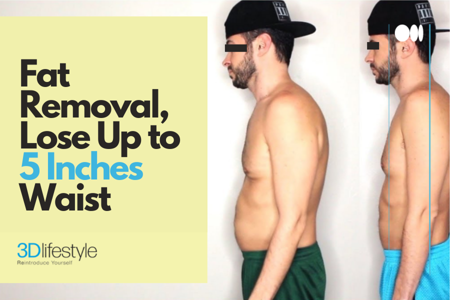 fat removal